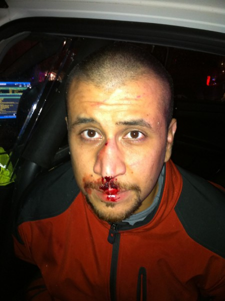 zimmerman bloodied