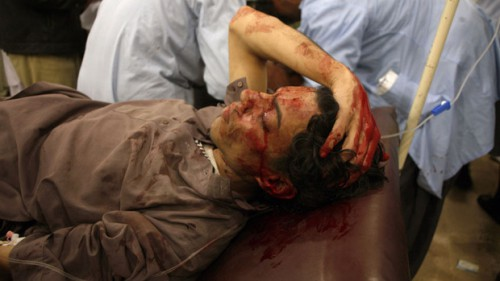 An injured man lies in a hospital after the second bomb blast in Quetta