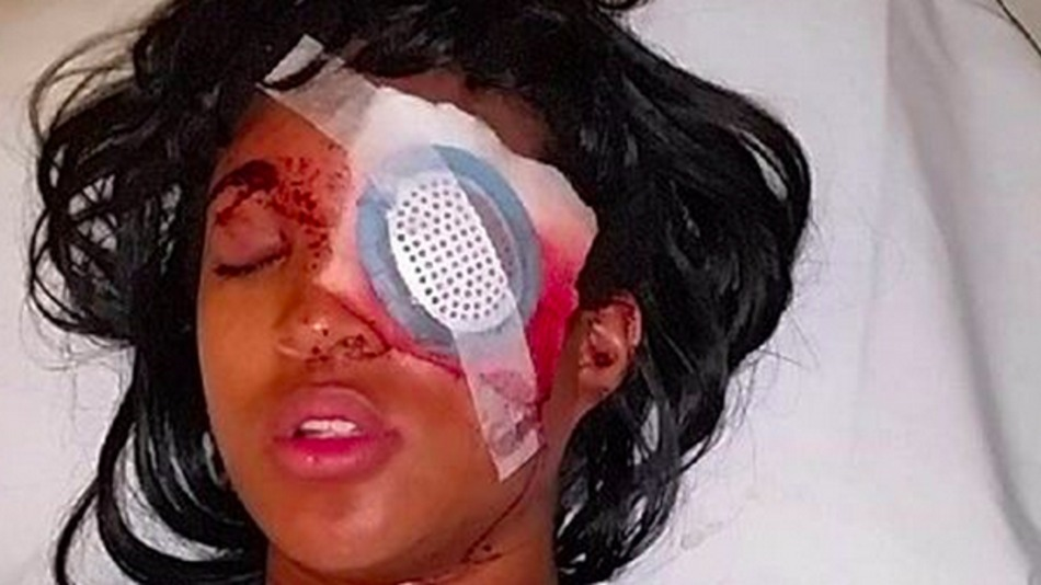Pregnant #Ferguson Protester Blinded After Boyfriend Tries to Run Over Police (Video)