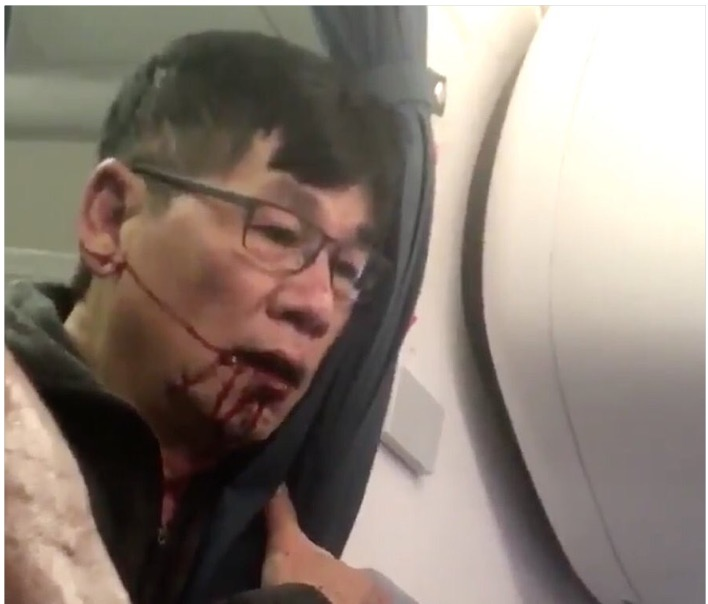 Passenger Bloodied, Dragged from Plane after United Overbooks Flight (VIDEO)