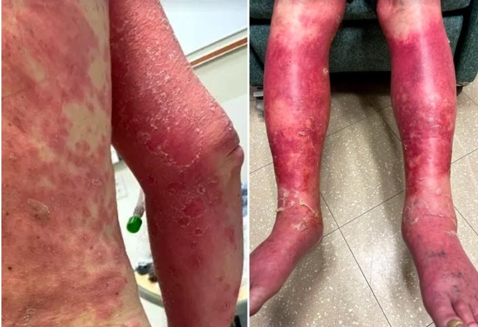 Man's Skin Burns, Swells, Then Peels Off in Severe Reaction to Johnson & Johnson Covid Vaccine