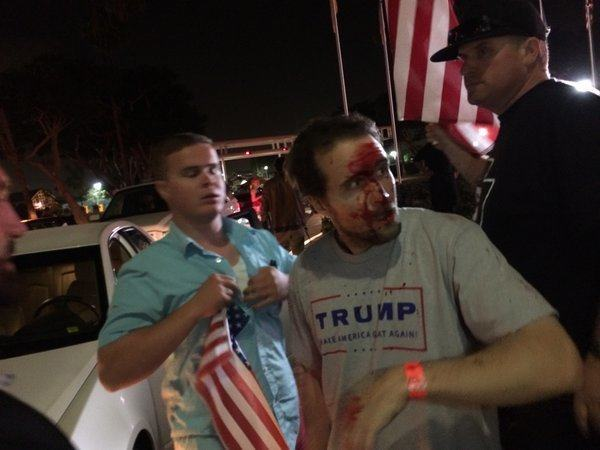 NEW PHOTOS Of Trump Supporter Hospitalized for Wearing Trump Hat and T-Shirt