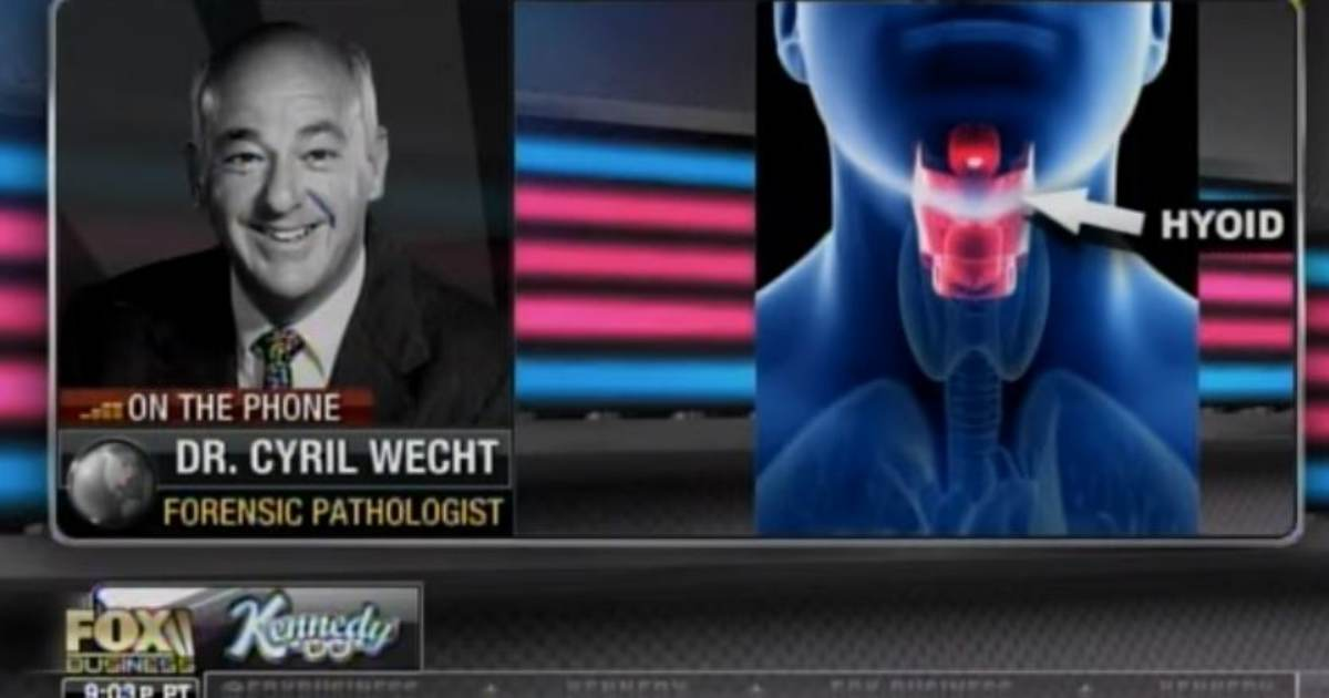 Top Forensic Pathologist: ONLY 1% of Hanging Deaths Resulted in Broken Hyoid Bone — Like What Epstein Had (VIDEO)