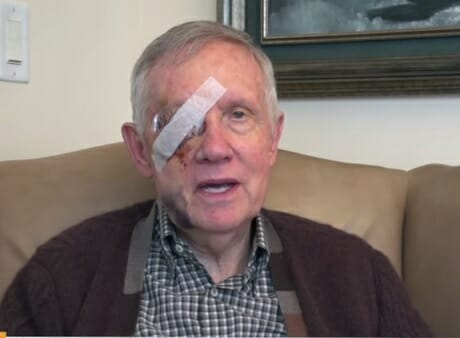 harry reid beat up