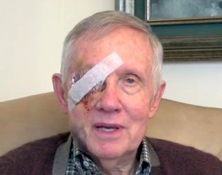 harry reid face