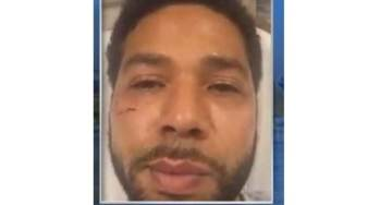 JUSSIE CRAY-CRAY… Chicago Police: Smollett Wrote the two Brothers a Personal Check — SCRATCHES WERE SELF-INFLICTED! (VIDEO)